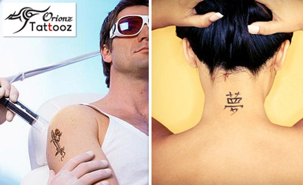 Get your old tattoo removed at just Rs.500. Offer valid for 3 sq inch!